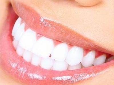 Alimente pentru dinti albi